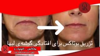 تزریق بوتاکس | فیلم تزریق بوتاکس | کلینیک پوست و مو رز | شماره 22