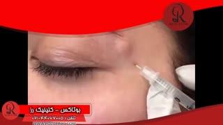 تزریق بوتاکس | فیلم تزریق بوتاکس | کلینیک پوست و مو رز | شماره 23