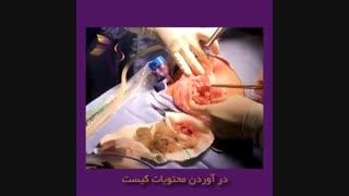 جراحی لاپاراسکوپی کیست درمویید ۹ سانتی در دختر خانم ۱۸ ساله