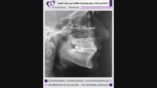 ارتودنسی بیمار با دیپ بایت شدید | دکتر فیروزی