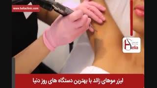 لیزر موهای زائد | فیلم لیزر موهای زائد | کلینیک پوست و مو هلیا | شماره 11