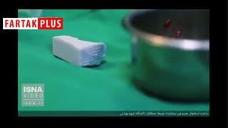 ساخت استخوان مصنوعی نیمهزنده در ایران