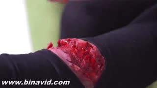 آموزش کمک اولیه در زمان مواجه شدن با خون ریزی زخم