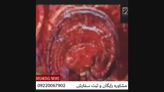 درمان قطعی بیماریها توسط قارچ گانودرما