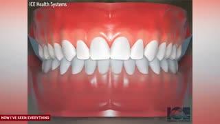 شیوه قرار گرفتن ارتودنسی دندان در دهان