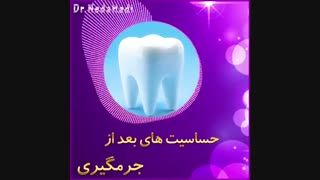 حساسیت های بعد از جرمگیری دندان