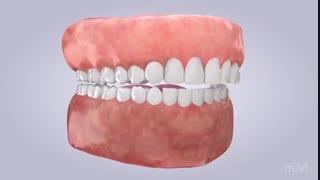 دندان قروچه یا بروکسیم