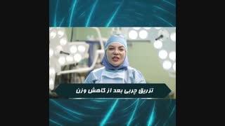 تزریق چربی پس از کاهش وزن