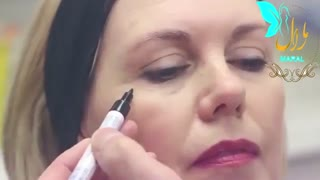 تزریق بوتاکس | فیلم تزریق بوتاکس | کلینیک پوست و مو مارال | شماره 18