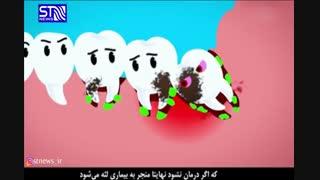 چه بر سر دندان عقل می آید؟