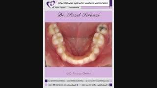 درمان ارتودنسی بدون آسیب دندانی | دکتر فیروزی
