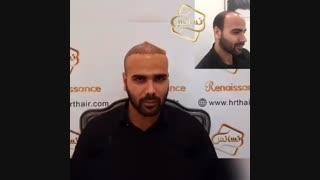کاشت مو رنسانس- سوپر کاشت کلینیک تخصصی رنسانس