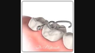فنرهای جدا کننده دندان | دکتر سعید قریشی