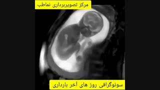 سونوگرافی روزهای آخر بارداری
