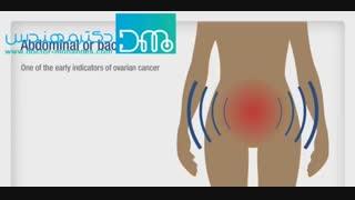 مهم ترین علائم سرطان تخمدان