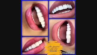 لمینیت کردن دندان بدون تراش دندان | کامپوزیت کردن دندان | قیمت روکش دندان | انواع روکش دندان