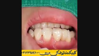کاربرد پل دندان در دندانپزشکی | نصب بریج دندان توسط دندانپزشک