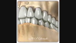 رابطه دندان نیش بالا و پایین | دکتر سعید قریشی