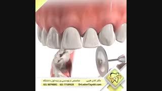 مثلث سیاه بین دندان ها   دکتر لادن طیبی