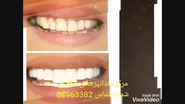مراحل سفید کردن دندان| مزایای بلیچینگ دندان | معایب بلیچینگ دندان | فیلم ایمپلنت کردن دندان