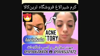 کرم شیرالاغ|09190678478|بهترین کرم درمان لک های حاملگی|رفع لک های پوست بدون بازگشت