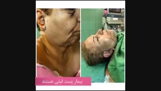 فیلم قبل و بعد از جراحی لیفت صورت با بی حسی