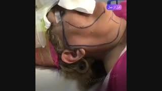 جراحی لیفت صورت هدیه ای برای جوانی و شادابی شما
