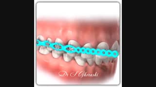 بستن فضای خالی بین دندانها با استفاده از الاستیک | دکتر قریشی