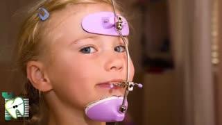اولین ویزیت ارتودنسی درچه سنی باید انجام شود؟ | کلینیک دندانپزشکی ایده آل