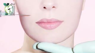 روش های زاویه سازی فک   کلینیک دندانپزشکی ایده آل