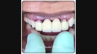 بریج دندان چیست؟ | کلینیک دندانپزشکی ایده آل