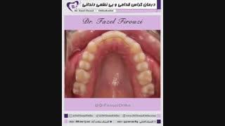 درمان کراس بایت قدامی و بی نظمی دندانی | دکتر فیروزی