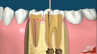 روت کانال دندان | دکتر مصطفی نژاد