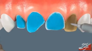 انیمیشن لمینیت دندان | دکتر اشکان مصطفی نژاد