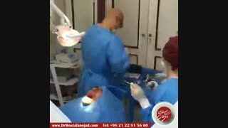جراحی ایمپلنت | دکتر اشکان مصطفی نژاد