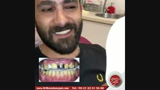 اصلاح طرح لبخند | دکتر اشکان مصطفی نژاد