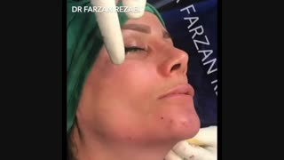زاویه سازی فک گونه و چانه همراه با جراحی بینی