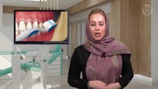 مراقبت های بعد ایمپلنت دندان یا کاشت دندان