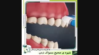 شیوه صحیح مسواک زدن | کلینیک دندانپزشکی ایده آل