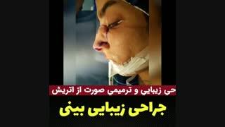 فیلم جراحی زیبایی بینی توسط دکتر علی میقانی