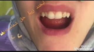 اصلاح طرح لبخند | دکتر حامد صالحی