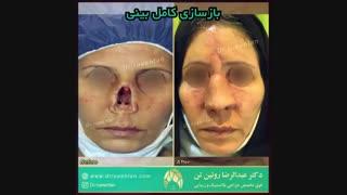 بازسازی بینی در بیمار مبتلا به سرطان پوست