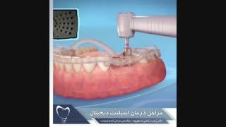 مراحل درمان ایمپلنت دیجیتال | دندانستان