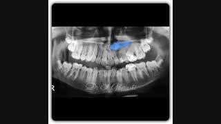 درمان دندان نهفته نیش افقی | دکتر سعید قریشی