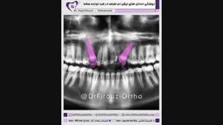 اجرای نمونه درمان ویدیویی برای جناب دکتر فاضل فیروزی | راهنمای لبخند