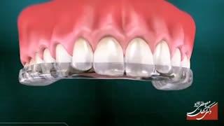 محافظ دهان (نایت گارد) | دکتر مصطفی نژاد