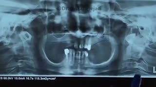 قبل و بعد درمان | دکتر اشکان مصطفی نژاد